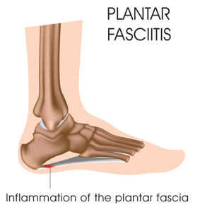 Treating Plantar Fasciitis Bondi Junction and St Ives