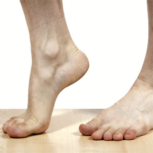 Aiding Heel Pain Treatment near Bondi Junction + St Ives