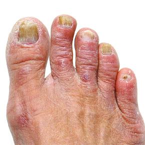 toenail fungus laser treatment barangaroo