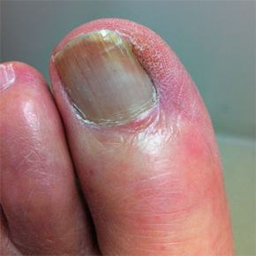 ingrown toenails Barangaroo