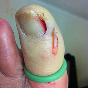 nail surgery st ives