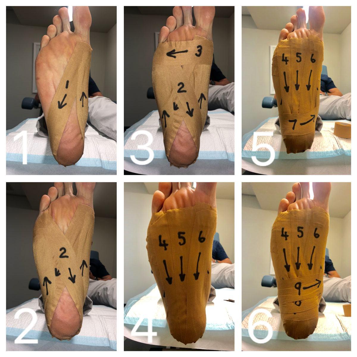 for plantar fasciitis/heel pain