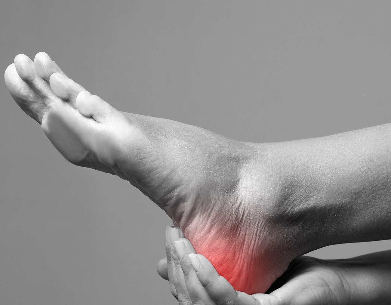 heel pain treatment sydney cbd
